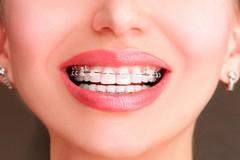 L'ortodonzia è importante su tutto il corpo