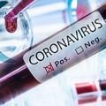 Covid-19, registrati 30 nuovi casi nel barese. A Terlizzi i positivi sono 7