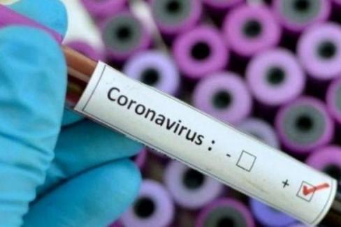 Tamponi coronavirus