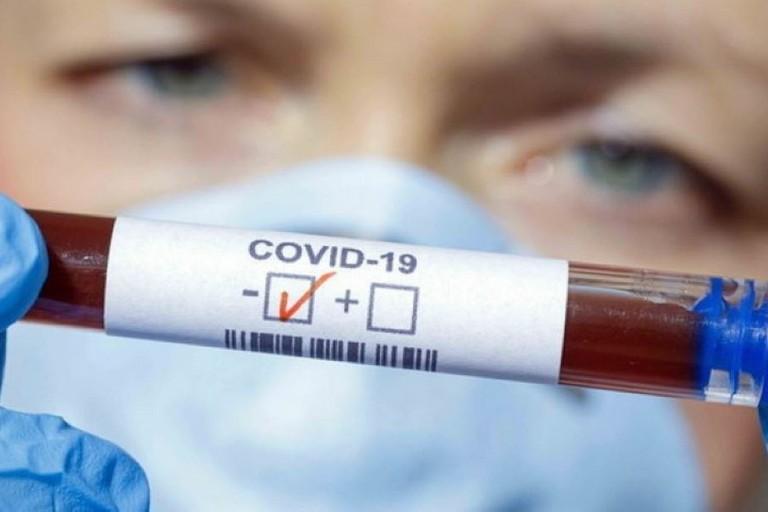 Covid: in Puglia 1.785 nuovi positivi. 27 i decessi